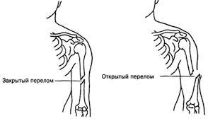 Перелом кости открытый и закрытый признаки и симптомы первая  Открытый и закрытый перелом