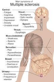 Ms Light Headed Multiple Sclerosis Signs And Symptoms Wikipedia