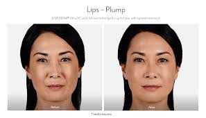 new beauty wellness juvederm before and after 9