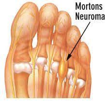 Morton's Neuroma#mortons #neuroma in 2020 | Foot remedies, Morton's  neuroma, Neuroma