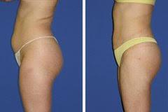 Liposuctie - liposculptuur met blijvend resultaat: info, prijzen foto's
