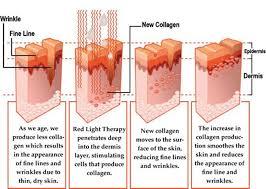 Red Light Therapy Psoriasis Red Light For Psoriasis Bigit Karikaturize Com
