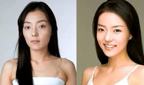 before and after photos of an unidentified korean celebrity showing the plastic surgery that