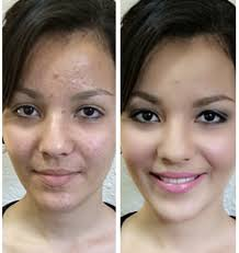 airbrush makeup over acne 25 best ideas about cover up