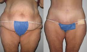 Contour Light Body Sculpting Before And After Plastic Surgery After Weight Loss St Louis Cosmetic
