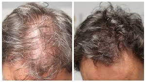 When hair follicles are damaged or irritated, it can cause itching or tingling, as well as areas of hair thinning. Women S Hair Loss Scalp Micropigmentation For Women By Hairline Ink Hairline Ink