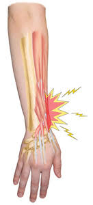 A forearm injury not only causes discomfort and pain, but it can also impact an individual's mobility. Arm Extensor Tendonitis Treatment