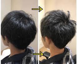 薄毛頭頂部が気になる方 増毛 美容師
