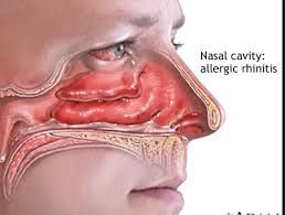 allergic rhinitis cure and treatment in homeopathic