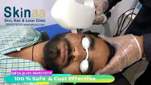 permanent hair removal with laser treatment for men women in jaipur on face at min cost