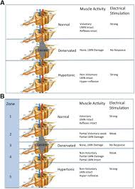upper and lower motor neuron paralysis