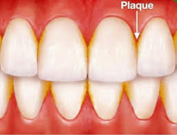 Coffee itself will not stain your teeth as much as the ingredients you add to your coffee might. How To Remove Coffee Stains From Teeth With Braces Teethwalls