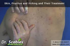 Skin, Pruritus and Itching and Their Treatment - Drscabies