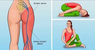 8 yoga poses for sciatica pain
