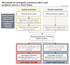 Pathophysiology Of Chf Heart Failure Mcmaster Pathophysiology Review