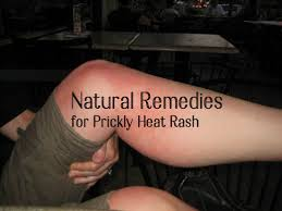10 Ways to Cure Prickly Heat Rash With Natural Home Remedies ...