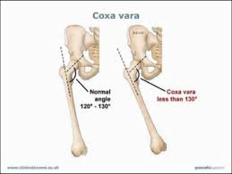 Coxa Vara Hip Assessment Physical Therapy Pther 538 With Judy At