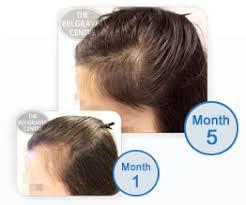 Male Pattern Baldness In Women Inspiration Hair Loss In Women Female Hair Loss