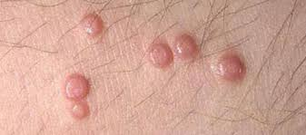 itchy inal lumps ps and sores