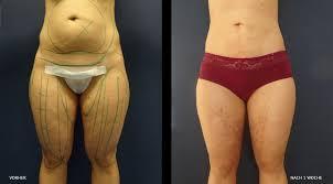 Fettabsaugung cellulite vorher nachher