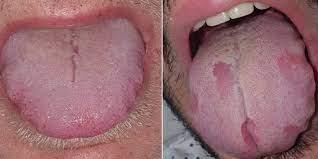 covid tongue swollen sore tongue