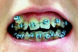 Braces Color Chart Fresh What Is The Best Color To Have For