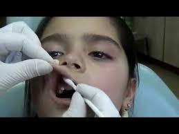 Рефераты по детской стоматологии  Метод проведения инфильтационной анестезии у детей