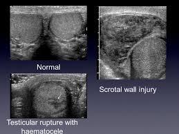 testicular rupture. testicular rupture with haematocele