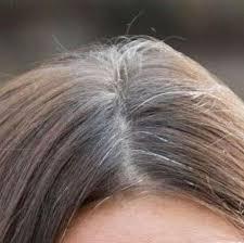 Image result for बाल सफ़ेद