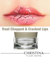 TREAT DRY, CHAPPED & CRACKED LIPS... - <b>Christina</b> ...