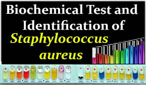 Biochemical Test And Identification Of Staphylococcus Aureus