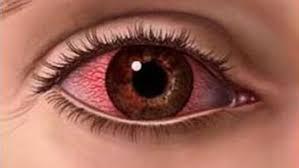 Image result for आंखों के रोग :