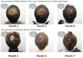 Male Pattern Baldness Causes Inspiration Advice On Treating Bald Spot Caused By Male Pattern Hair Loss'