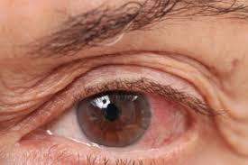 allergie oog