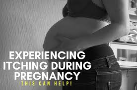 Experiencing Itching during Pregnancy?