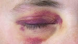 14 simple ways to get rid of black eye