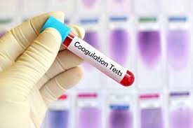Recent inventions such as Smartphone-enabled Coagulation Tes...   MENAFN.COM