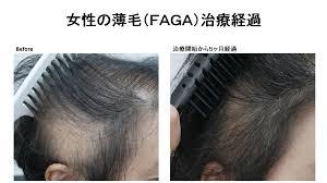 女性の薄毛faga治療 静岡美容外科橋本クリニック 静岡美容外科