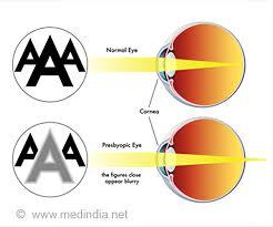 Presbyopia Causes Symptoms Diagnosis Treatment Prevention