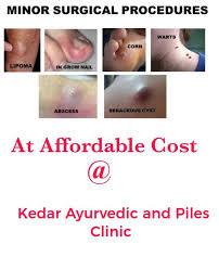 kedar ayurvedic and piles clinic mumbai
