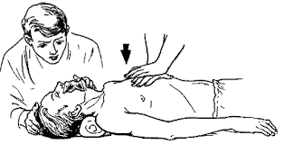Реферат Искусственное дыхание Непрямой массаж сердца Виды  Непрямой массаж сердца Виды кровотечений Техника наложения жгута