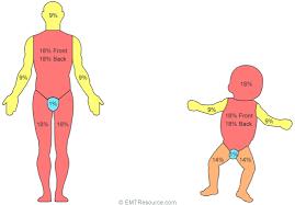 Rule Of 9 S Burn Chart Child Rule Of Nines