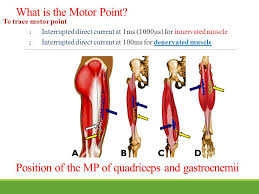 Motor Points For Electrical Stimulation Chart Neuromuscular Electrical Stimulation Nmes Ppt Video