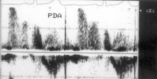 Глава врожденные пороки сердца у взрослых Контрольный объем установлен в легочной артерии ближе к ее боковой стенке Поток появляется в середине систолы