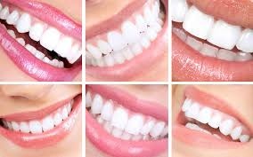 Aesthetic Smiles By Design Smile Designs Aesthetic Dental Zone