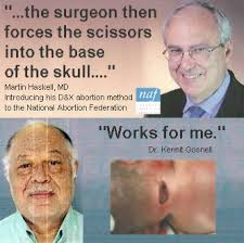 Partial Birth Abortion Plan Realchoice Gosnell Carhart And The Pba Ban Part 3