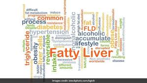 Chronic Liver Disease Diet Chart World Liver Day 2019 What Causes Fatty Liver Expert Diet
