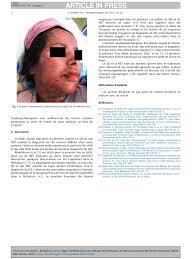 Lupus ryth mateux syst mique se pr sentant comme un syndrome de.