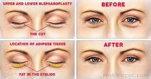 surgery to get rid of under eye bags