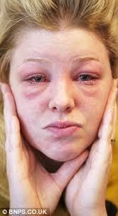 carly lewis who had allergic reaction to eyelash tinting